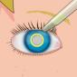 Operate Now! — EyeSurgery